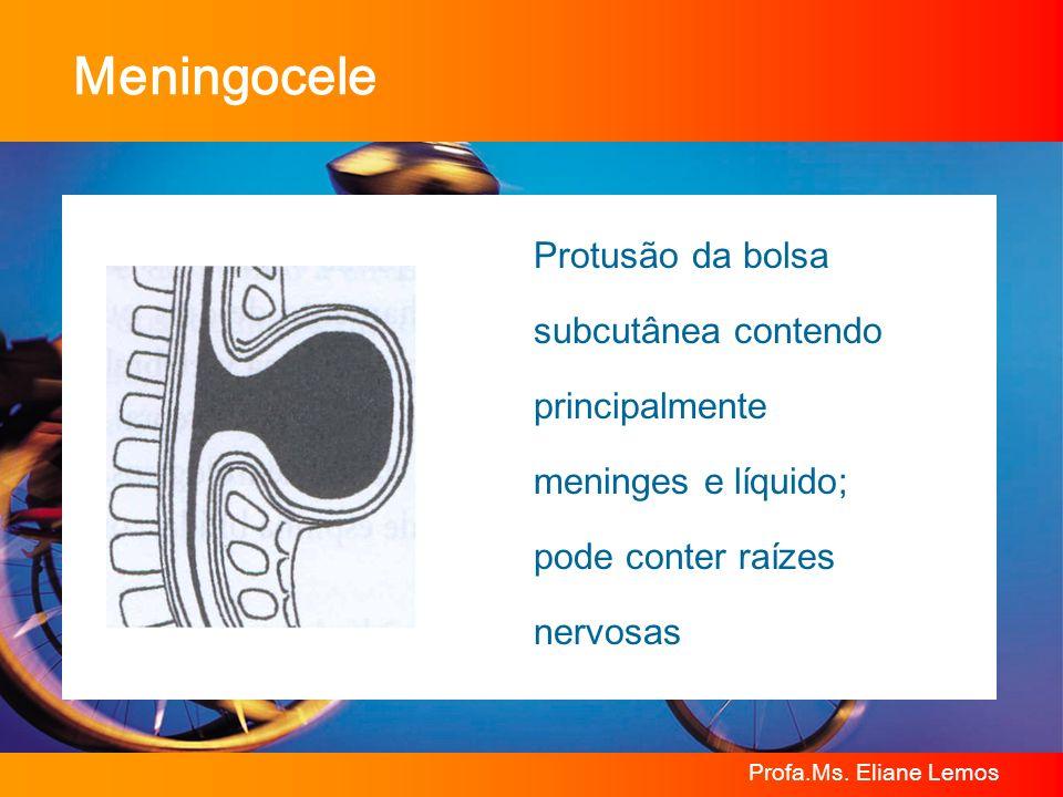 Profa.Ms. Eliane Lemos Meningocele Protusão da bolsa subcutânea contendo principalmente meninges e líquido; pode conter raízes nervosas