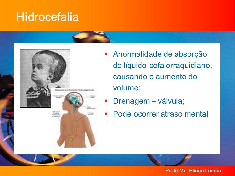 Profa.Ms. Eliane Lemos Hidrocefalia Anormalidade de absorção do líquido cefalorraquidiano, causando o aumento do volume; Drenagem – válvula; Pode ocor