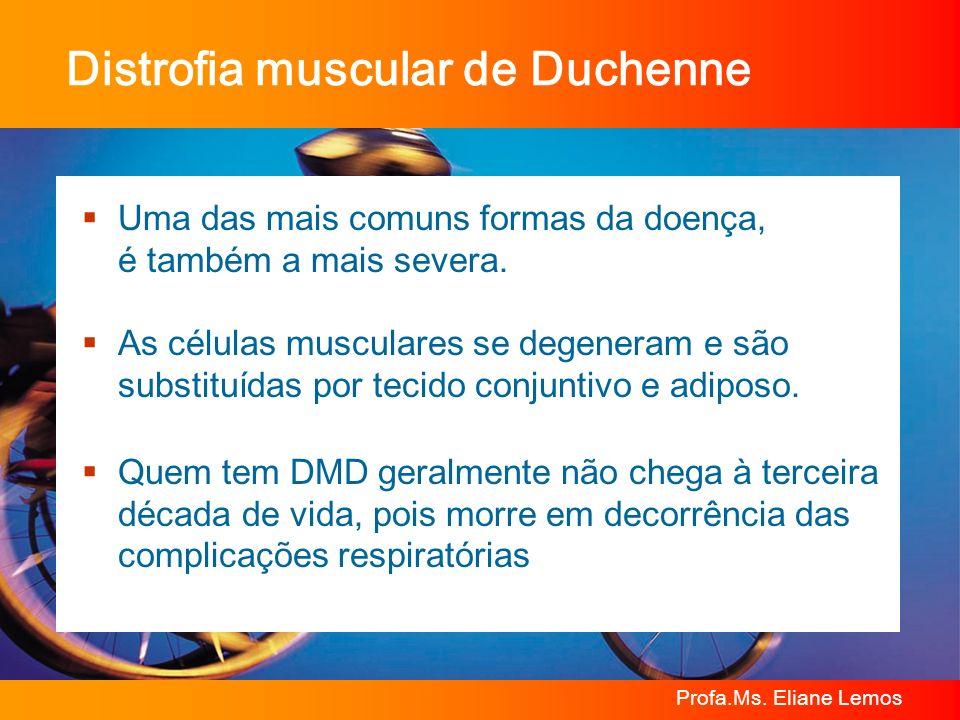 Profa.Ms. Eliane Lemos Distrofia muscular de Duchenne Uma das mais comuns formas da doença, é também a mais severa. As células musculares se degeneram