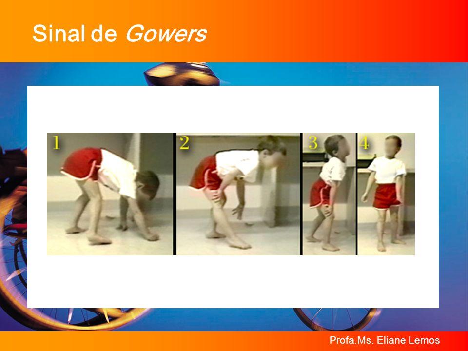 Profa.Ms. Eliane Lemos Sinal de Gowers