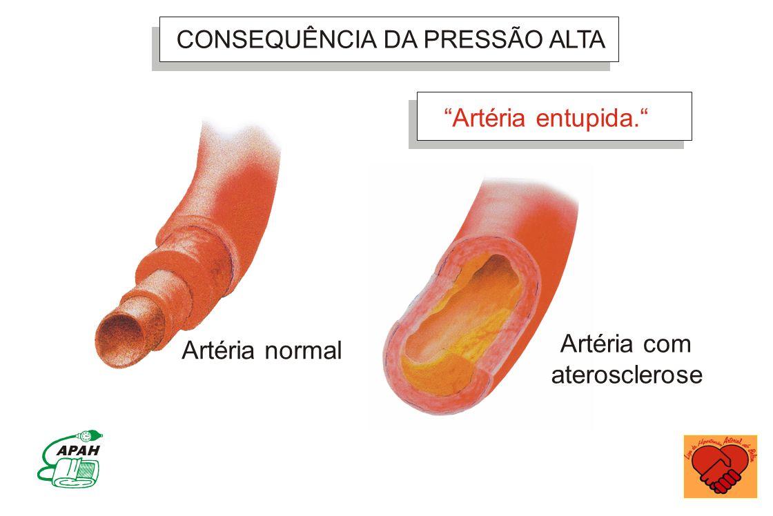 CONSEQUÊNCIA DA PRESSÃO ALTA Artéria normal Artéria entupida. Artéria com aterosclerose