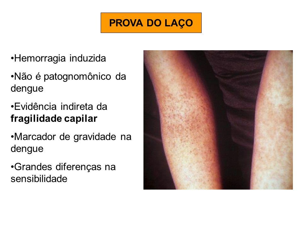 PROVA DO LAÇO Hemorragia induzida Não é patognomônico da dengue Evidência indireta da fragilidade capilar Marcador de gravidade na dengue Grandes dife