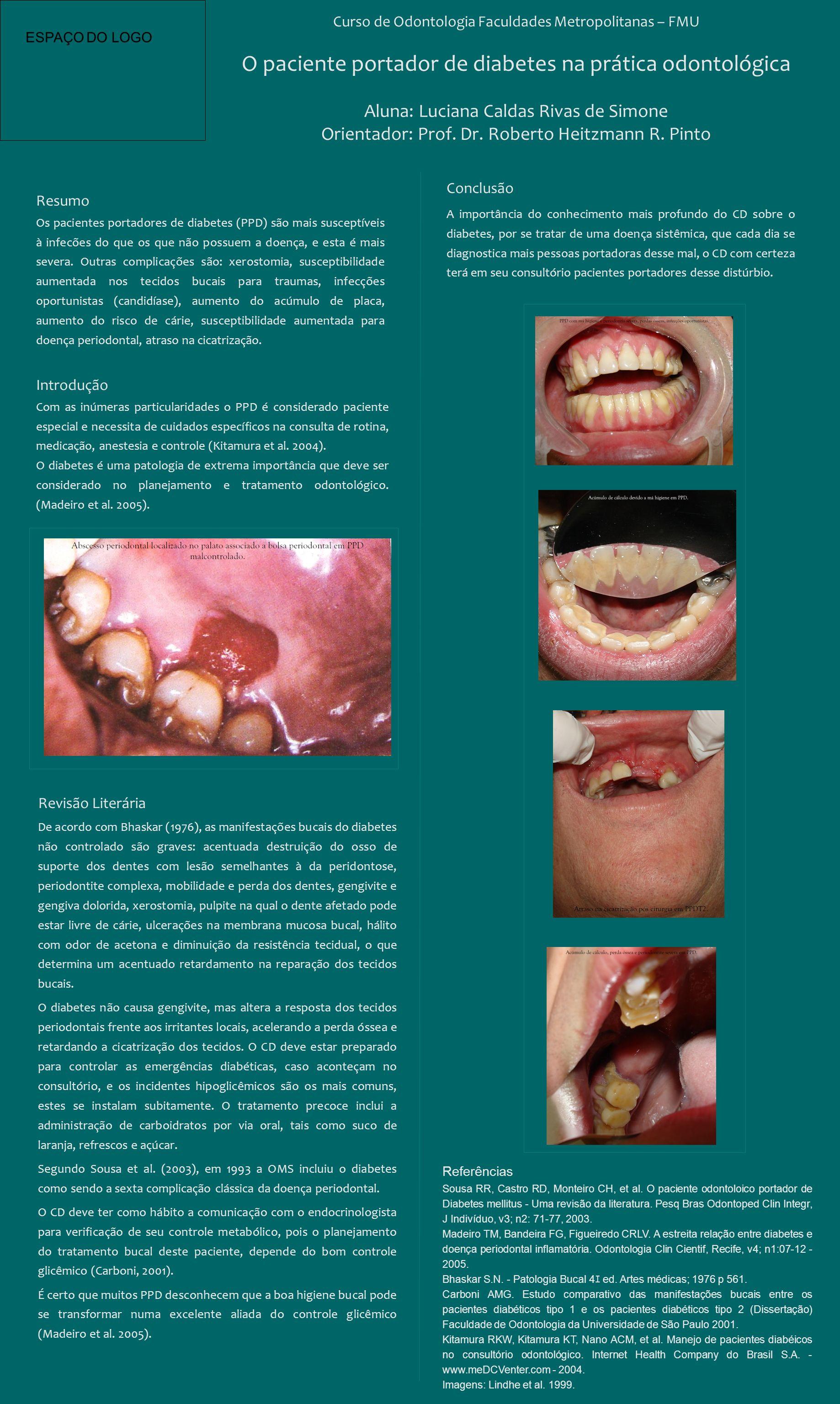 Curso de Odontologia Faculdades Metropolitanas – FMU O paciente portador de diabetes na prática odontológica Aluna: Luciana Caldas Rivas de Simone Ori