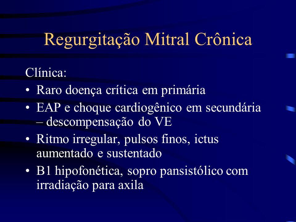 Regurgitação Mitral Crônica Clínica: Raro doença crítica em primária EAP e choque cardiogênico em secundária – descompensação do VE Ritmo irregular, p