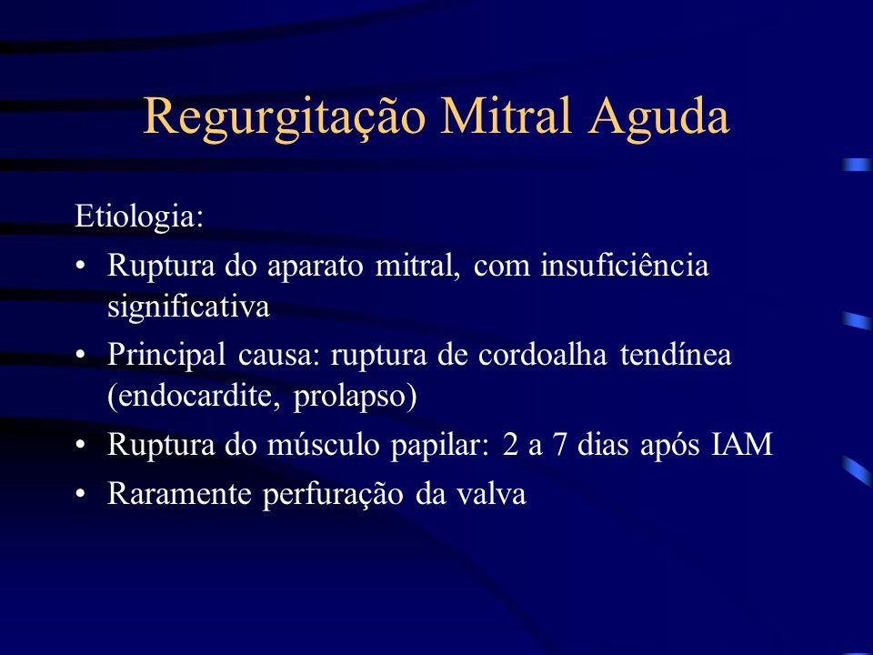 Regurgitação Mitral Aguda Etiologia: Ruptura do aparato mitral, com insuficiência significativa Principal causa: ruptura de cordoalha tendínea (endoca