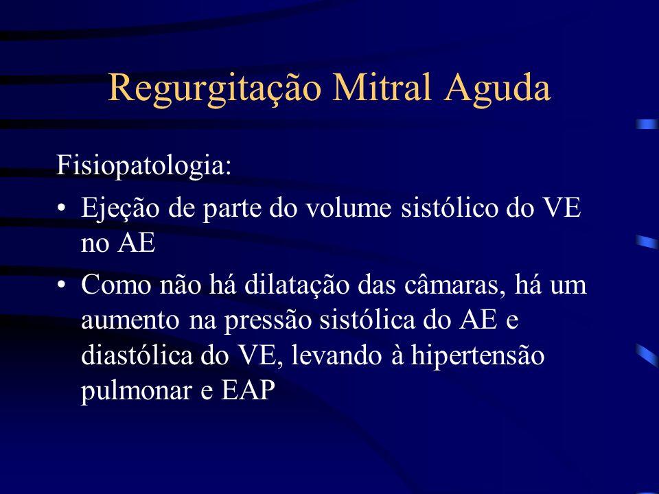 Regurgitação Mitral Aguda Fisiopatologia: Ejeção de parte do volume sistólico do VE no AE Como não há dilatação das câmaras, há um aumento na pressão
