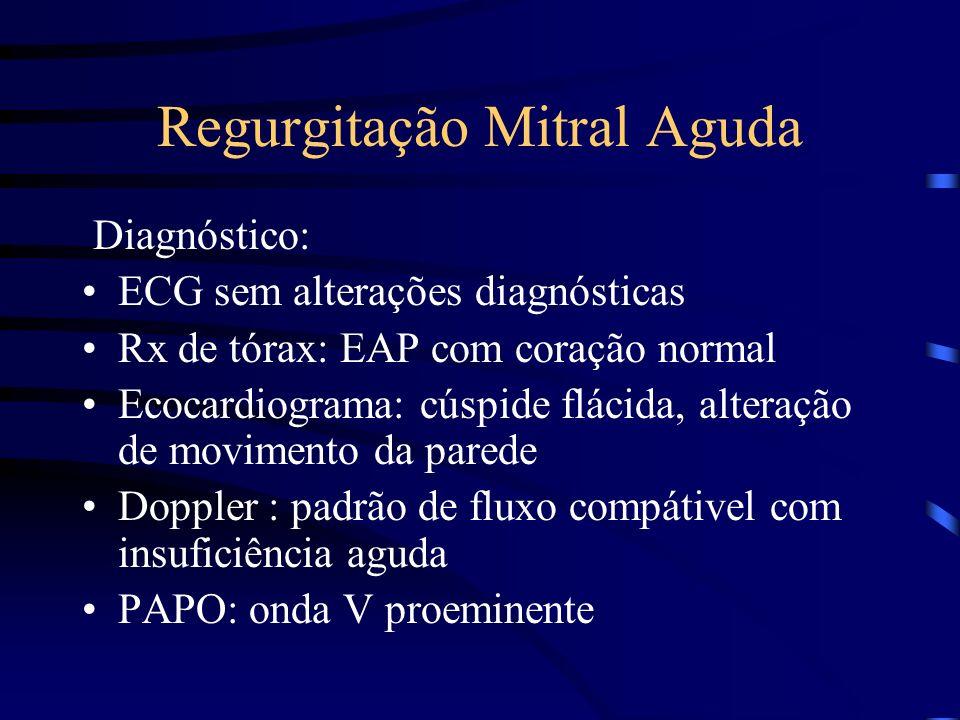 Regurgitação Mitral Aguda Diagnóstico: ECG sem alterações diagnósticas Rx de tórax: EAP com coração normal Ecocardiograma: cúspide flácida, alteração