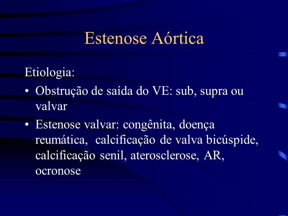 Estenose Aórtica Etiologia: Obstrução de saída do VE: sub, supra ou valvar Estenose valvar: congênita, doença reumática, calcificação de valva bicúspi