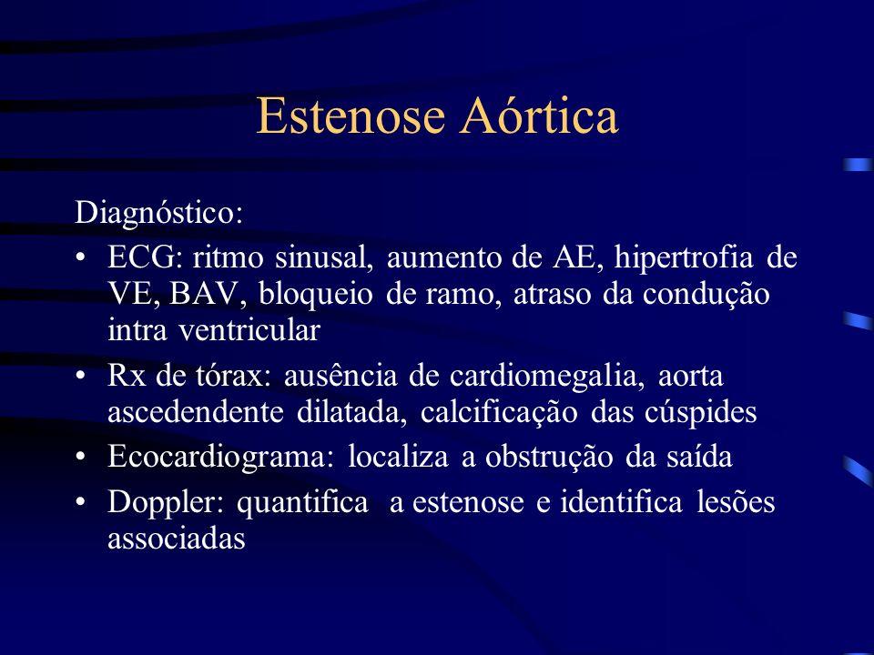 Estenose Aórtica Diagnóstico: ECG: ritmo sinusal, aumento de AE, hipertrofia de VE, BAV, bloqueio de ramo, atraso da condução intra ventricular Rx de