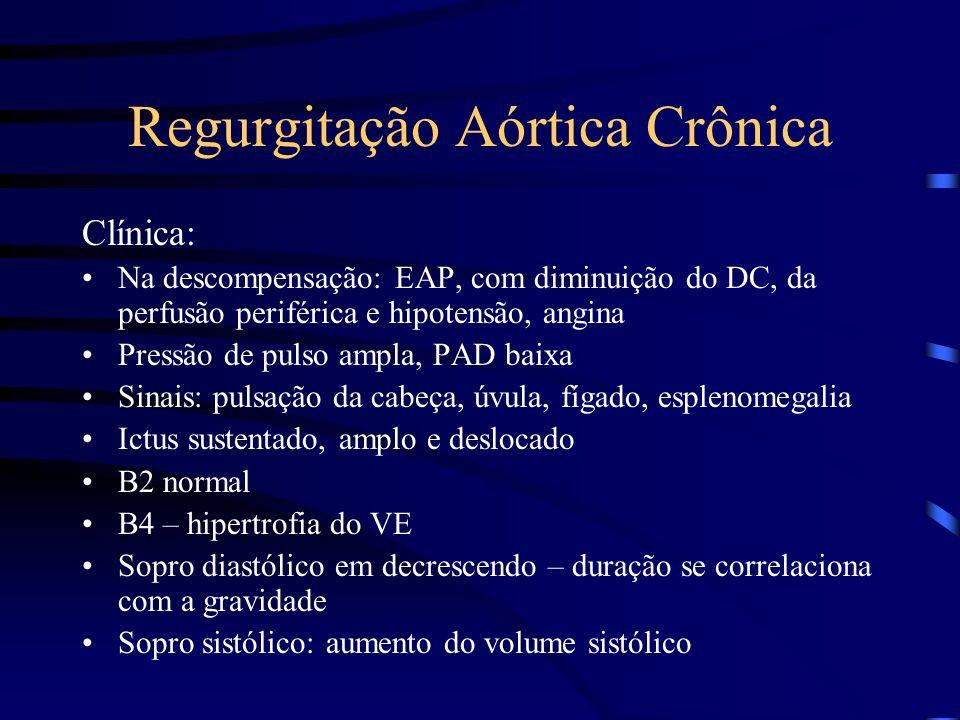 Regurgitação Aórtica Crônica Clínica: Na descompensação: EAP, com diminuição do DC, da perfusão periférica e hipotensão, angina Pressão de pulso ampla
