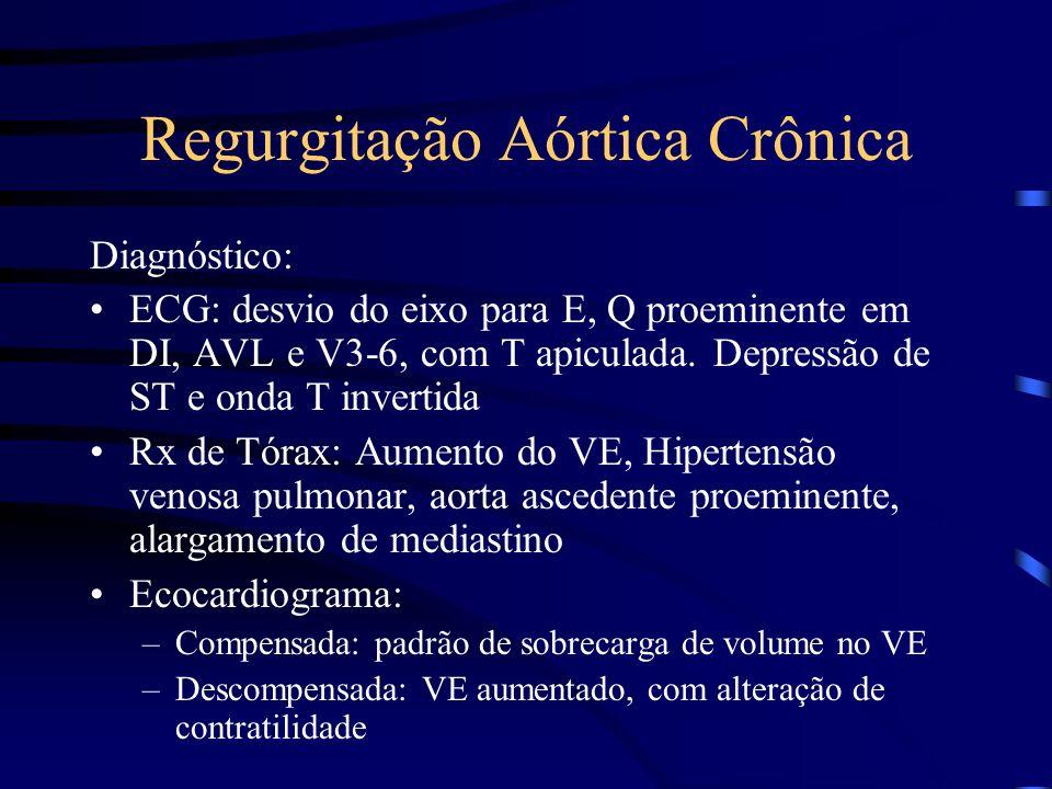 Regurgitação Aórtica Crônica Diagnóstico: ECG: desvio do eixo para E, Q proeminente em DI, AVL e V3-6, com T apiculada. Depressão de ST e onda T inver