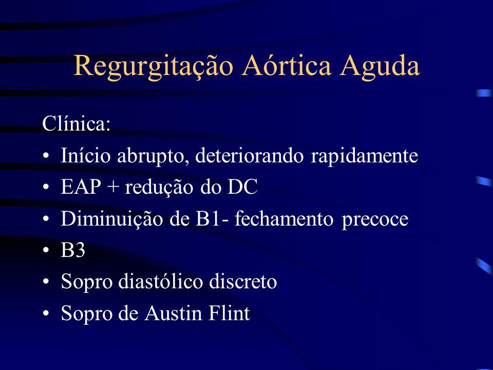 Regurgitação Aórtica Aguda Clínica: Início abrupto, deteriorando rapidamente EAP + redução do DC Diminuição de B1- fechamento precoce B3 Sopro diastól