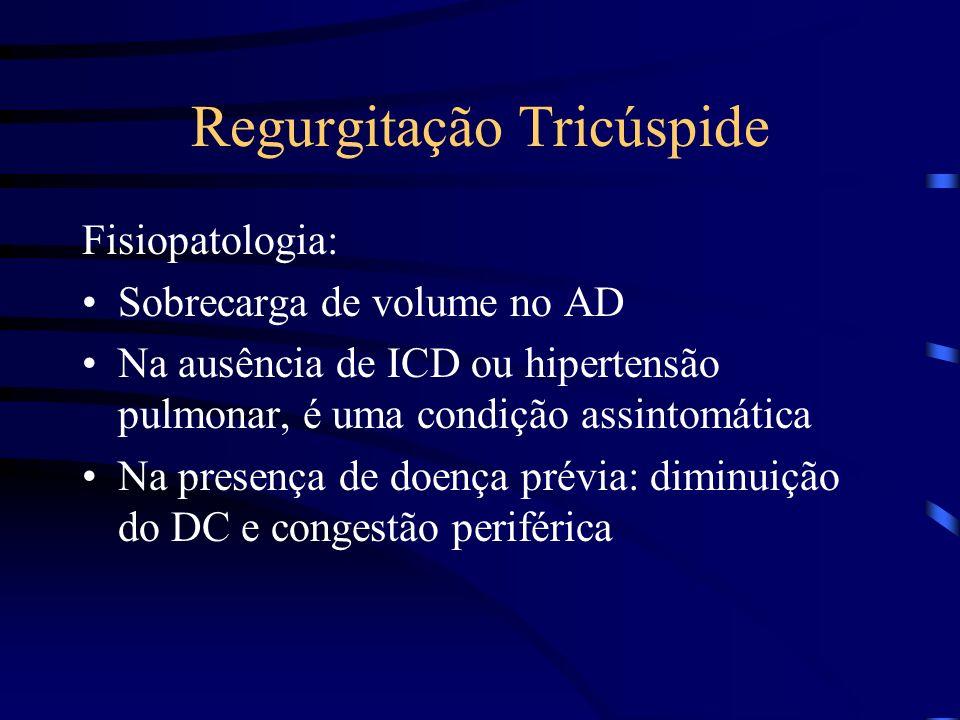 Regurgitação Tricúspide Fisiopatologia: Sobrecarga de volume no AD Na ausência de ICD ou hipertensão pulmonar, é uma condição assintomática Na presenç