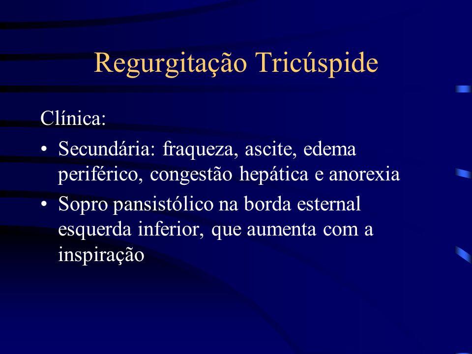 Regurgitação Tricúspide Clínica: Secundária: fraqueza, ascite, edema periférico, congestão hepática e anorexia Sopro pansistólico na borda esternal es