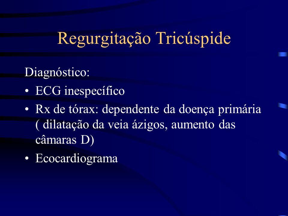 Regurgitação Tricúspide Diagnóstico: ECG inespecífico Rx de tórax: dependente da doença primária ( dilatação da veia ázigos, aumento das câmaras D) Ec