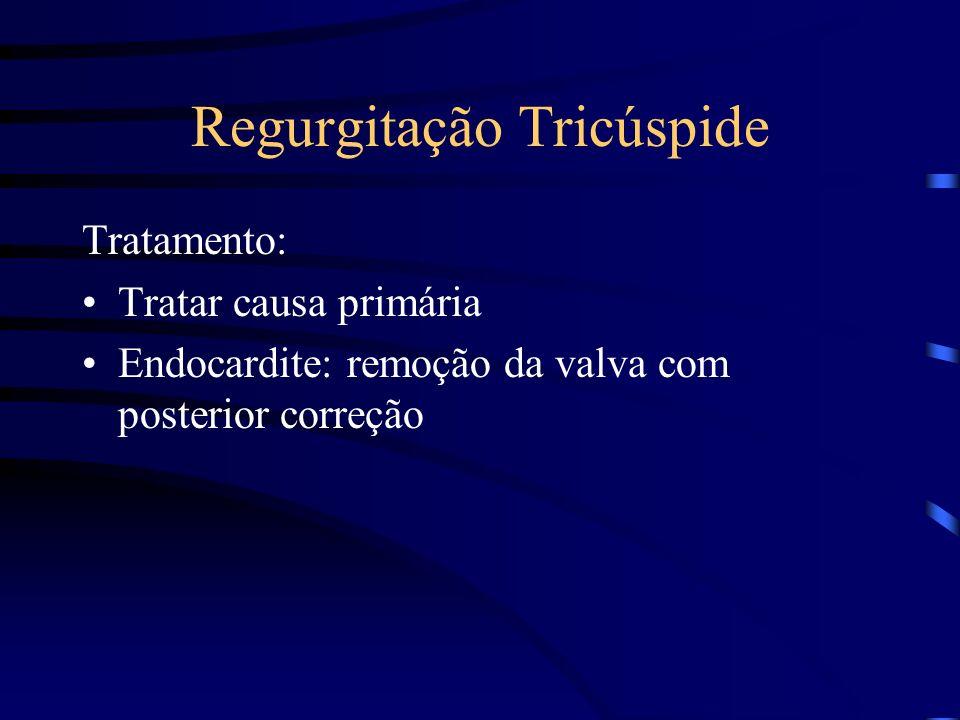 Regurgitação Tricúspide Tratamento: Tratar causa primária Endocardite: remoção da valva com posterior correção