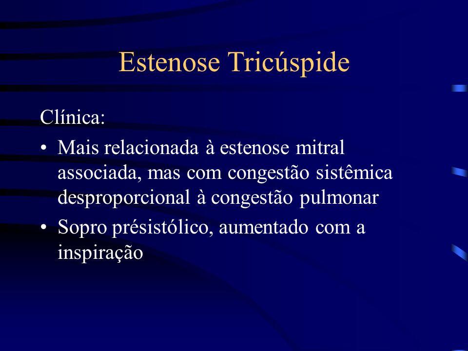 Estenose Tricúspide Clínica: Mais relacionada à estenose mitral associada, mas com congestão sistêmica desproporcional à congestão pulmonar Sopro prés