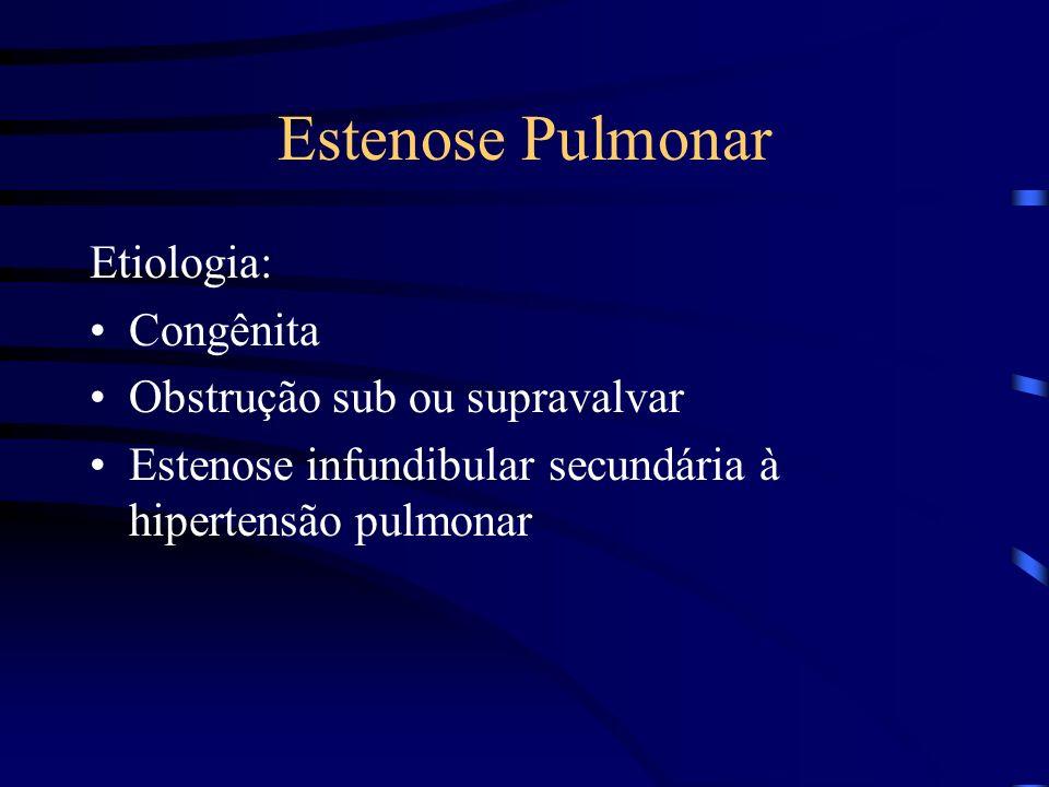 Estenose Pulmonar Etiologia: Congênita Obstrução sub ou supravalvar Estenose infundibular secundária à hipertensão pulmonar