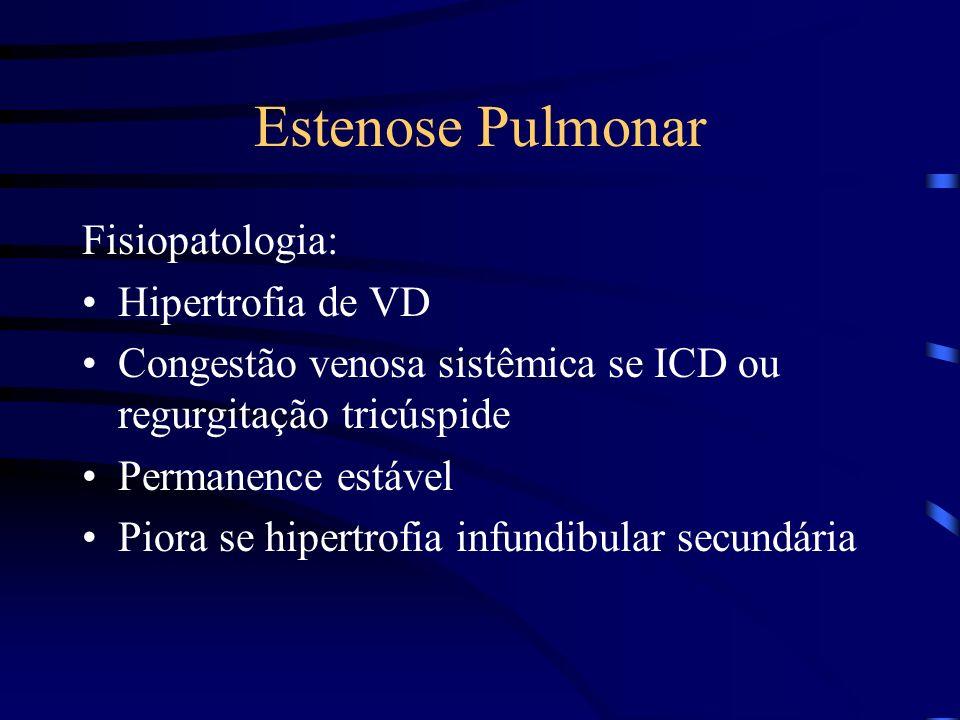 Estenose Pulmonar Fisiopatologia: Hipertrofia de VD Congestão venosa sistêmica se ICD ou regurgitação tricúspide Permanence estável Piora se hipertrof