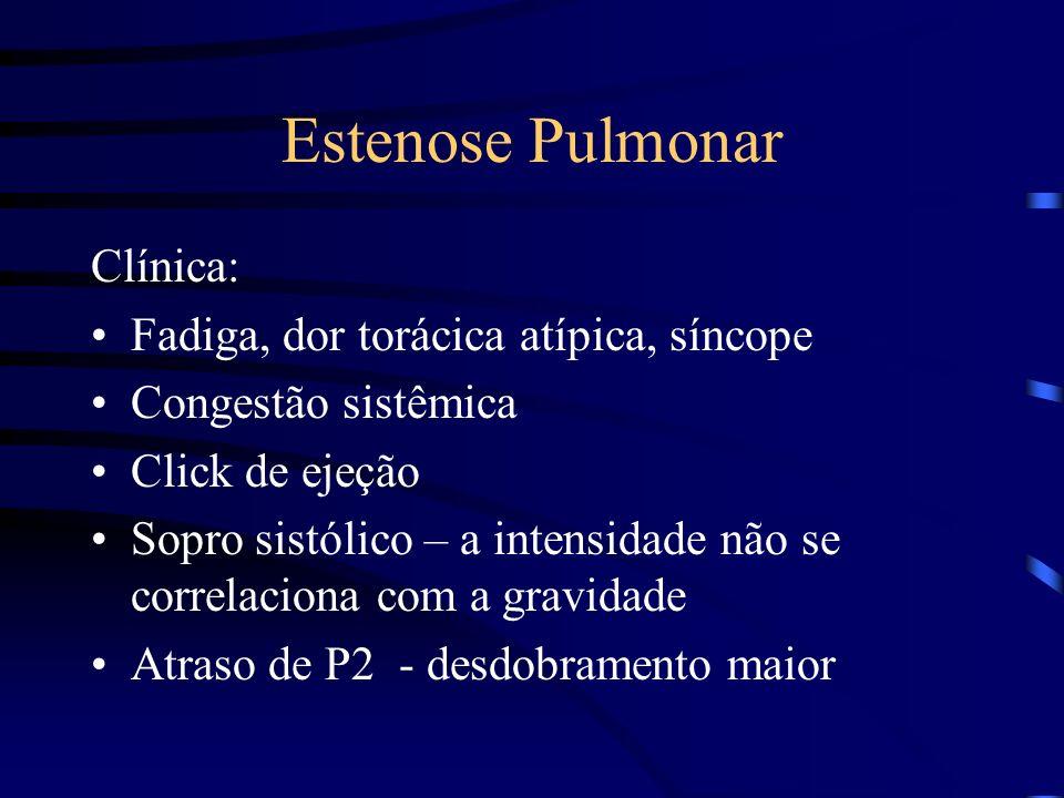 Estenose Pulmonar Clínica: Fadiga, dor torácica atípica, síncope Congestão sistêmica Click de ejeção Sopro sistólico – a intensidade não se correlacio
