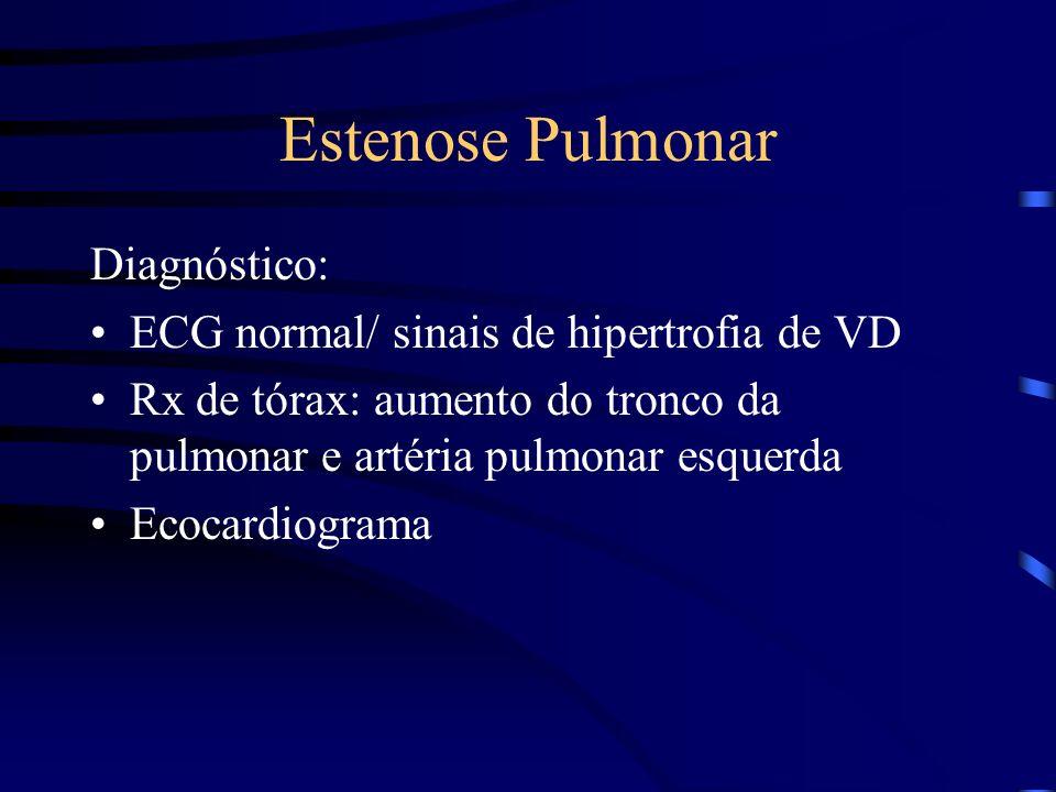 Estenose Pulmonar Diagnóstico: ECG normal/ sinais de hipertrofia de VD Rx de tórax: aumento do tronco da pulmonar e artéria pulmonar esquerda Ecocardi