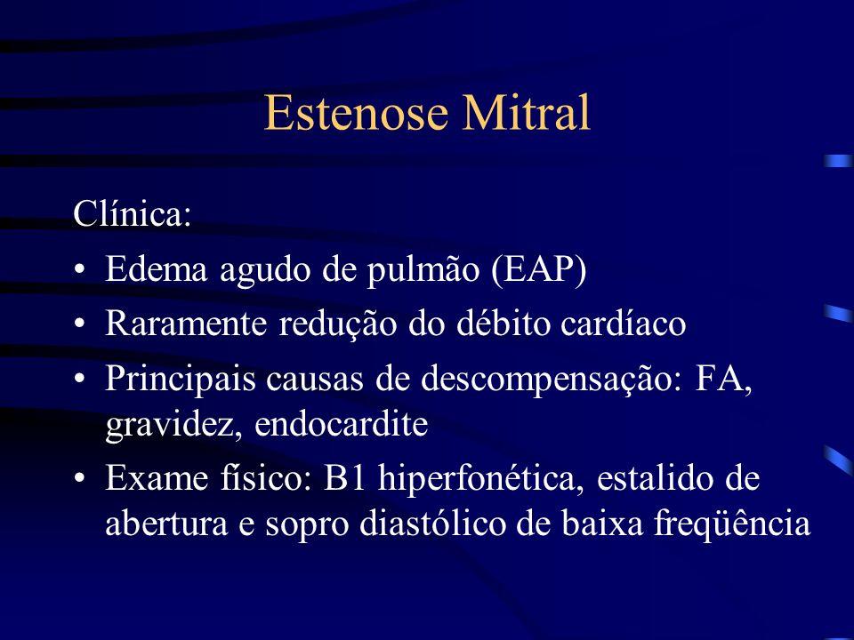 Estenose Mitral Clínica: Edema agudo de pulmão (EAP) Raramente redução do débito cardíaco Principais causas de descompensação: FA, gravidez, endocardi