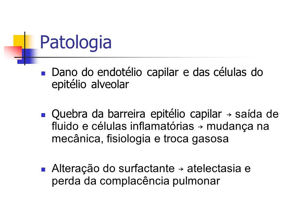 Patologia Dano do endotélio capilar e das células do epitélio alveolar Quebra da barreira epitélio capilar saída de fluido e células inflamatórias mud