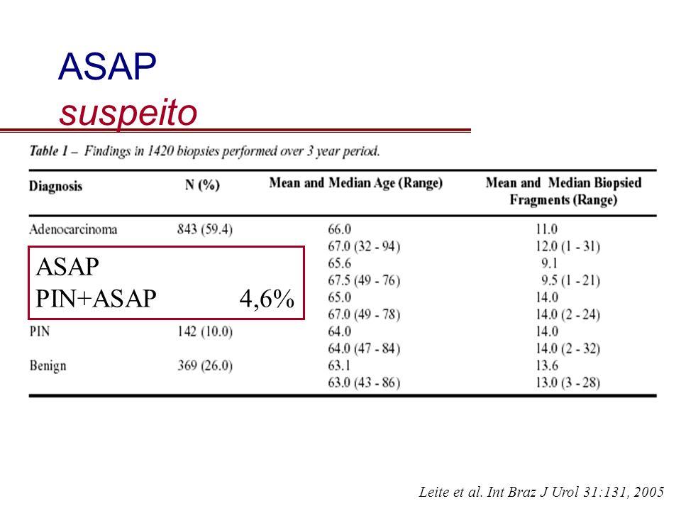 ASAP suspeito Leite et al. Int Braz J Urol 31:131, 2005 ASAP PIN+ASAP4,6%