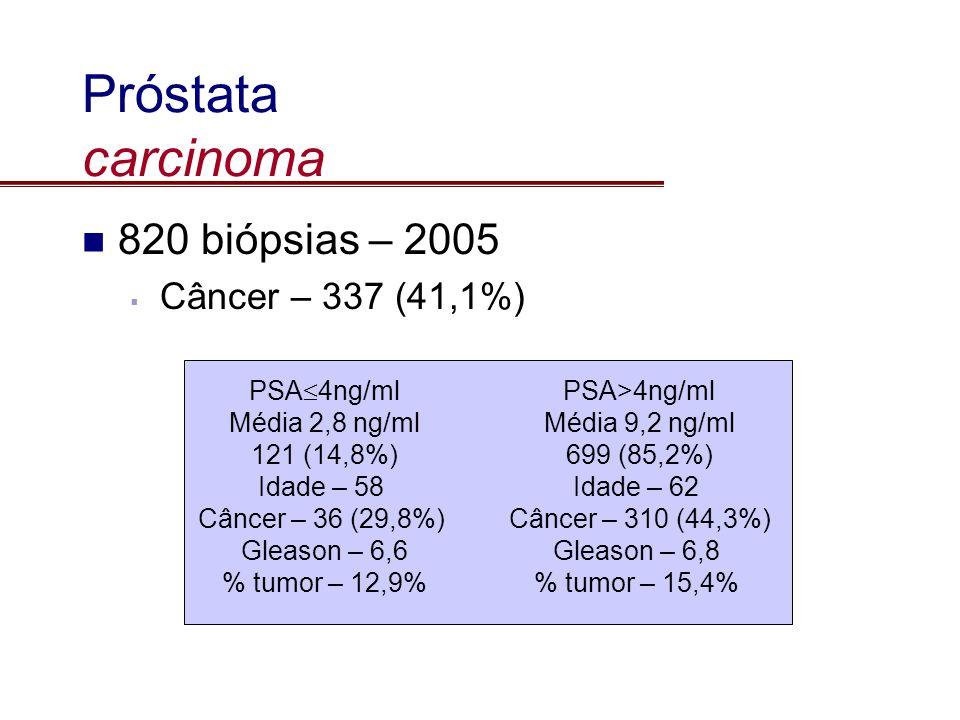 Próstata carcinoma 820 biópsias – 2005 Câncer – 337 (41,1%) PSA 4ng/ml Média 2,8 ng/ml 121 (14,8%) Idade – 58 Câncer – 36 (29,8%) Gleason – 6,6 % tumo