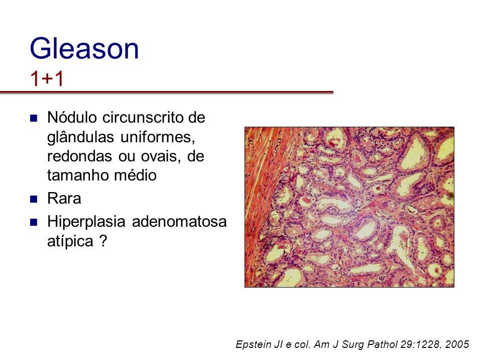 Gleason 1+1 Nódulo circunscrito de glândulas uniformes, redondas ou ovais, de tamanho médio Rara Hiperplasia adenomatosa atípica ? Epstein JI e col. A