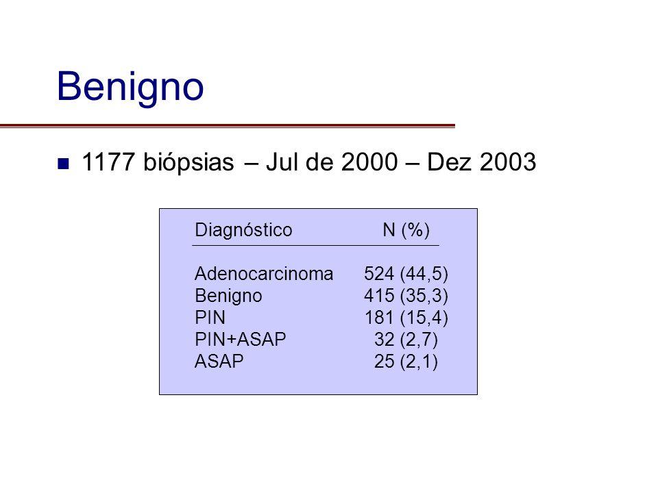 Benigno 1177 biópsias – Jul de 2000 – Dez 2003 Diagnóstico Adenocarcinoma Benigno PIN PIN+ASAP ASAP N (%) 524 (44,5) 415 (35,3) 181 (15,4) 32 (2,7) 25