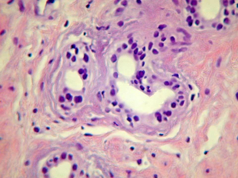 Atrofia Postma R et al.