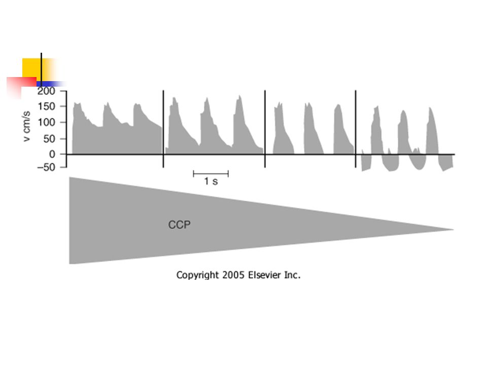 Aumentos de volumes localizados fazem uma curva P/V menos íngreme.