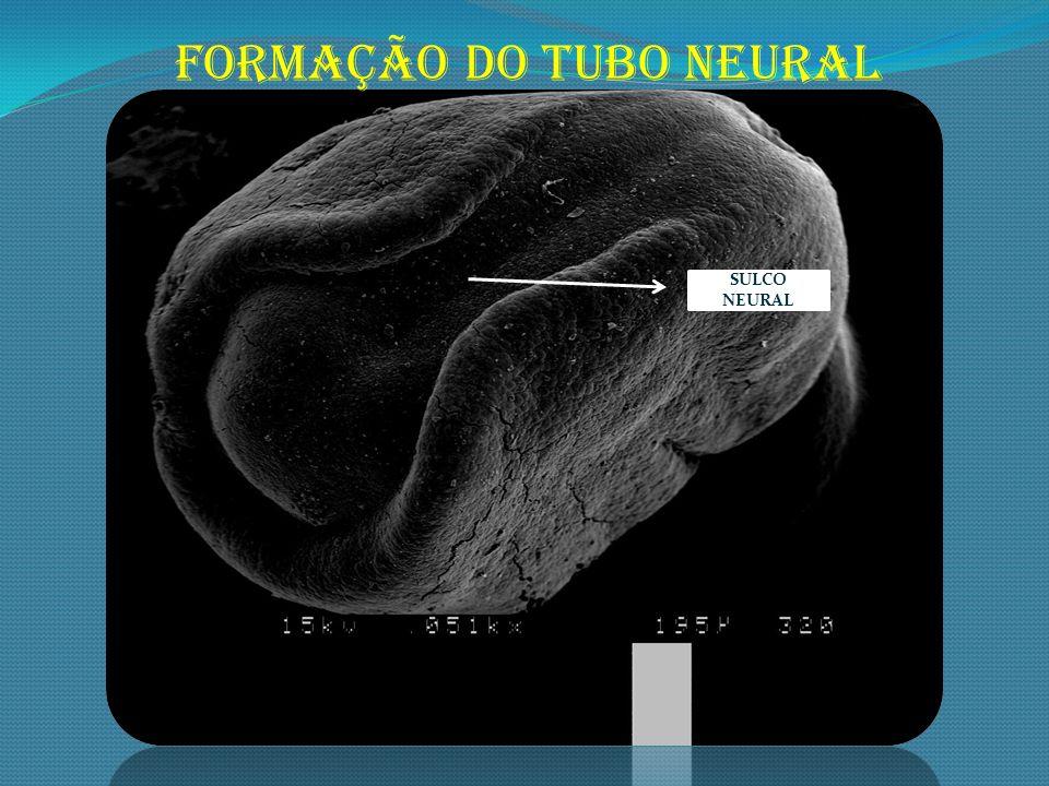 SULCO NEURAL FORMAÇÃO DO TUBO NEURAL