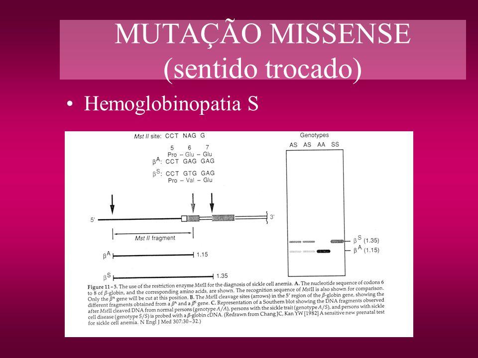 MUTAÇÃO MISSENSE (sentido trocado) Hemoglobinopatia S