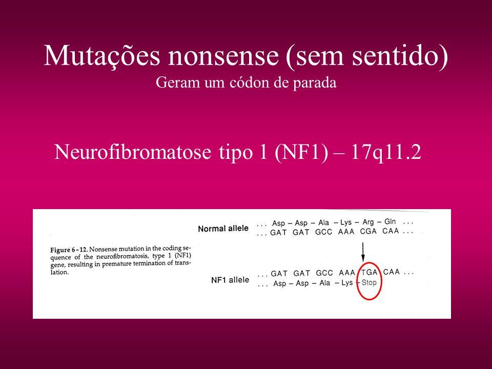 Mutações nonsense (sem sentido) Geram um códon de parada Neurofibromatose tipo 1 (NF1) – 17q11.2