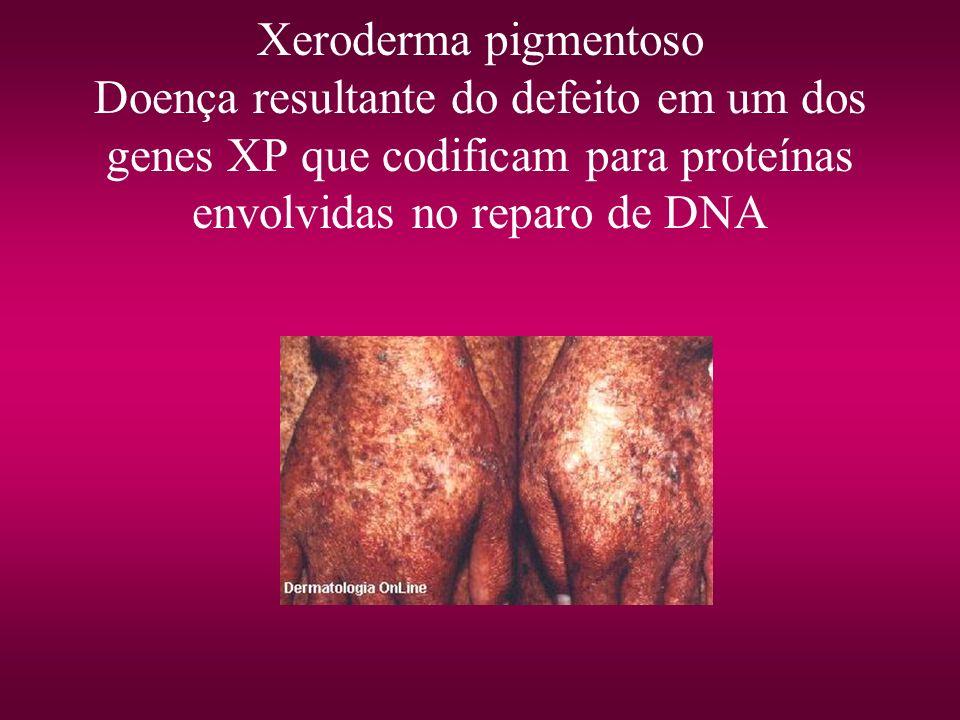 Xeroderma pigmentoso Doença resultante do defeito em um dos genes XP que codificam para proteínas envolvidas no reparo de DNA