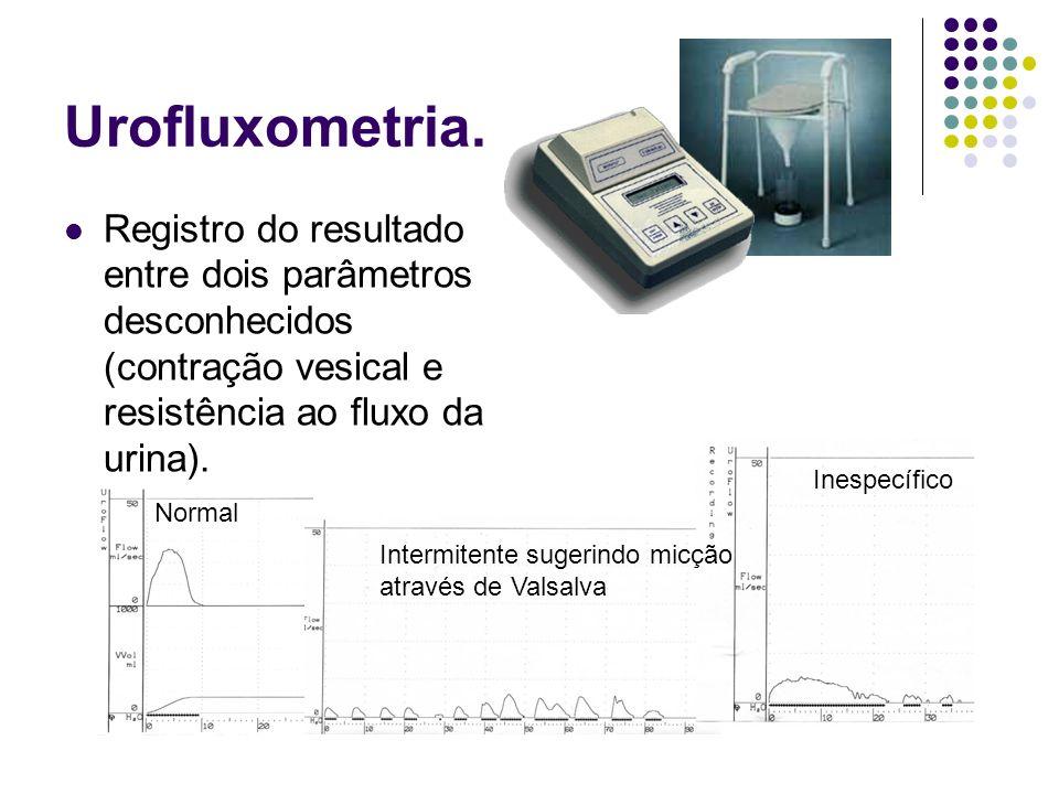 Urofluxometria. Registro do resultado entre dois parâmetros desconhecidos (contração vesical e resistência ao fluxo da urina). Normal Intermitente sug