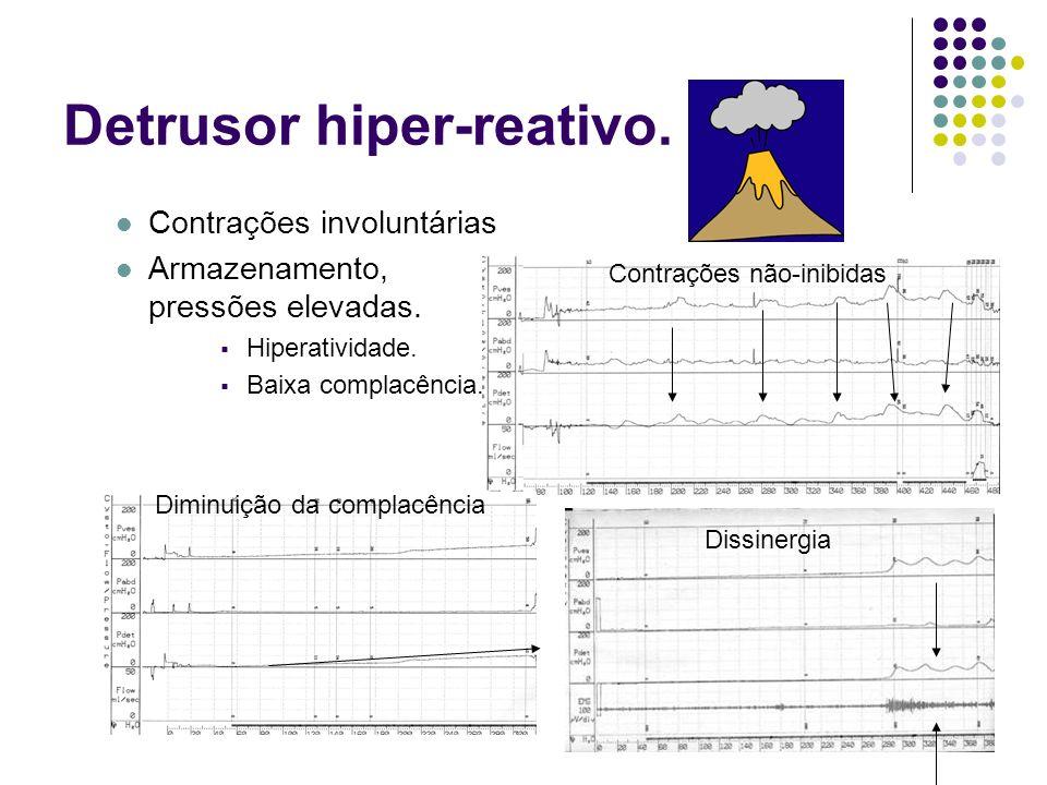 Detrusor hiper-reativo. Contrações involuntárias Armazenamento, pressões elevadas. Hiperatividade. Baixa complacência. Contrações não-inibidas Diminui