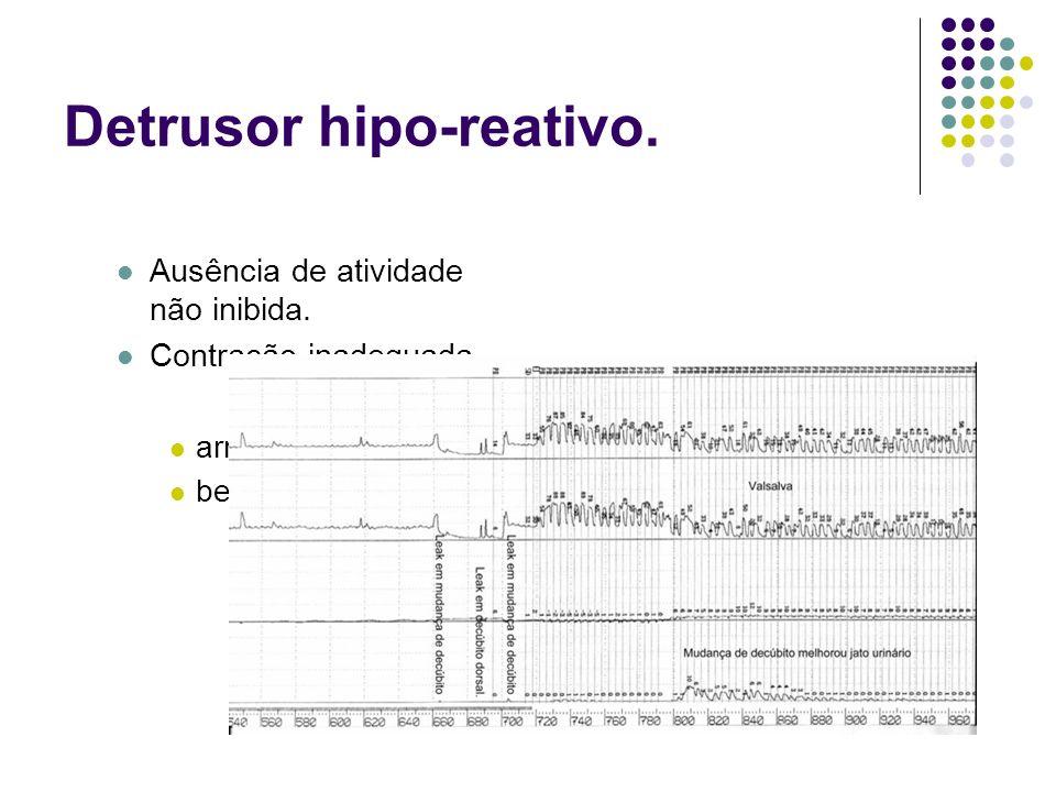 Detrusor hipo-reativo. Ausência de atividade não inibida. Contração inadequada. arreflexia. bexiga não-contrátil.