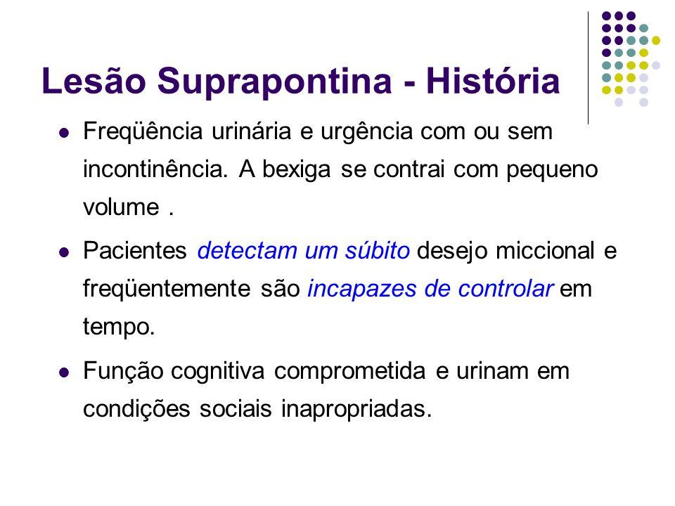 Lesão Suprapontina - História Freqüência urinária e urgência com ou sem incontinência. A bexiga se contrai com pequeno volume. Pacientes detectam um s