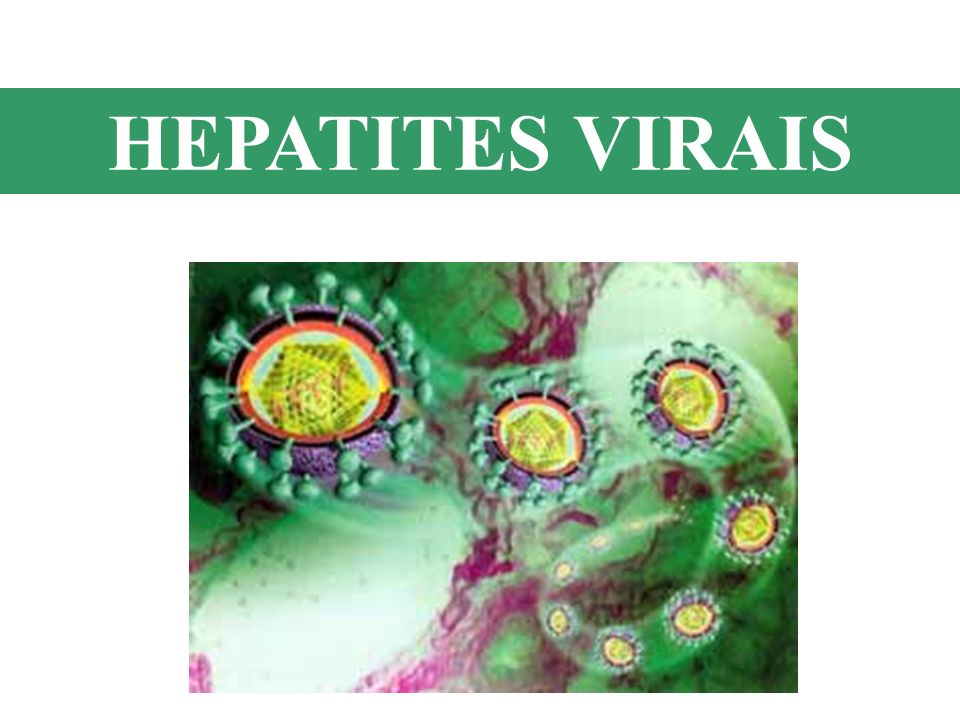 HEPATITE C (HCV) Transmissão: -Parenteral - Sexual Transfusão sanguínea ou transplante de doadores infectados Usuários de drogas injetáveis Hemodiálise Relação sexual com múltiplos parceiros Fatores de Risco: