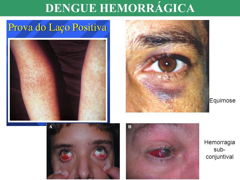 DENGUE HEMORRÁGICA Equimose Hemorragia sub- conjuntival
