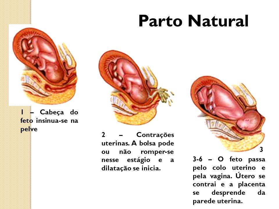 1 – Cabeça do feto insinua-se na pelve 2 – Contrações uterinas. A bolsa pode ou não romper-se nesse estágio e a dilatação se inicia. 3-6 – O feto pass
