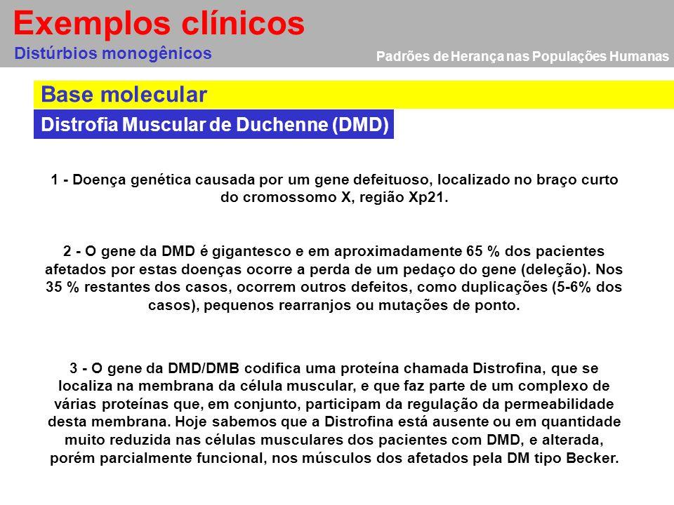 Padrões de Herança nas Populações Humanas Distúrbios ligados ao cromossomo X Distrofia Muscular de Duchenne (DMD) Distúrbios monogênicos Exemplos clín