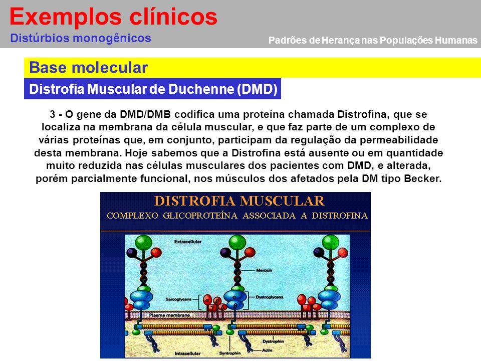 Padrões de Herança nas Populações Humanas Base molecular Distúrbios monogênicos Exemplos clínicos 1 - Doença genética causada por um gene defeituoso,