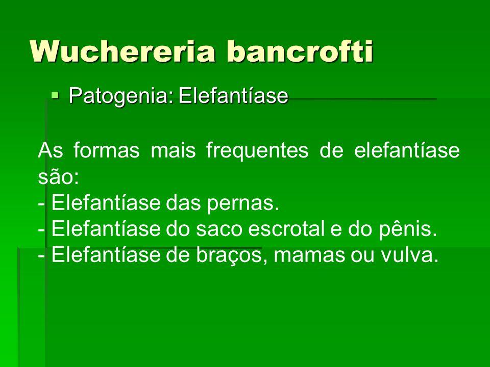 Wuchereria bancrofti Patogenia: Elefantíase Patogenia: Elefantíase As formas mais frequentes de elefantíase são: - Elefantíase das pernas. - Elefantía