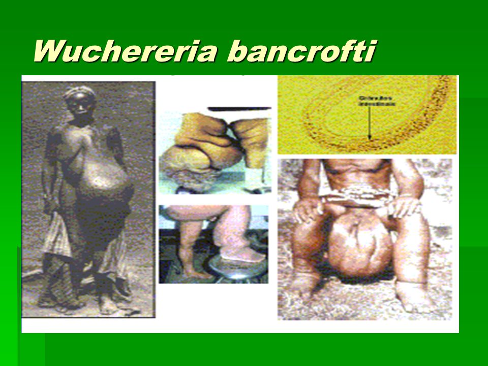 Wuchereria bancrofti