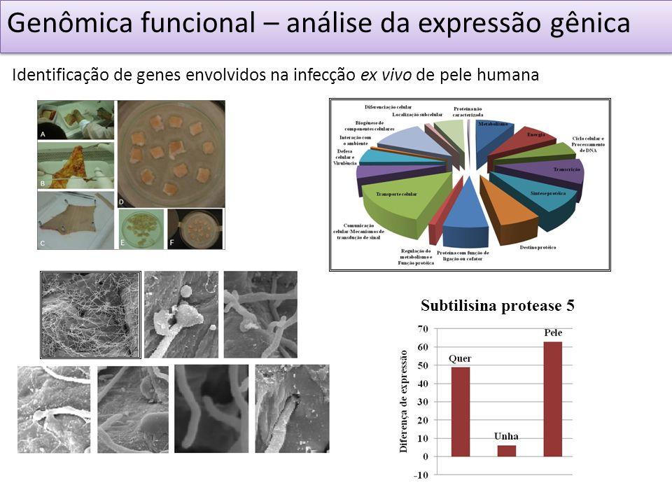 Genômica funcional – análise da expressão gênica Identificação de genes envolvidos na infecção ex vivo de pele humana Subtilisina protease 5