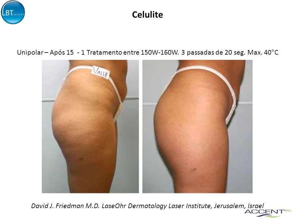 Celulite David J. Friedman M.D. LaseOhr Dermatology Laser Institute, Jerusalem, Israel Unipolar – Após 15 - 1 Tratamento entre 150W-160W. 3 passadas d